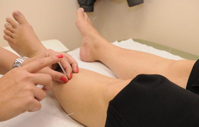 L'agopuntura per alleviare le allergie