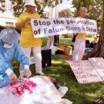 Medici occidentali divisi sul prelievo forzato di organi in Cina
