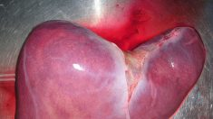 5 sostanze che proteggono il fegato contro le tossine